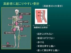 骨折と親ゆび003